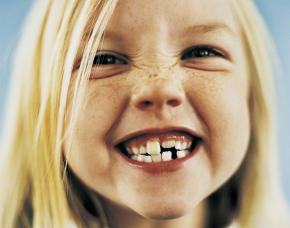4 Vital Keys to Healthy Teeth--by Minneapolis area Kids Dentist
