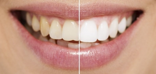 Brighten your smile easy and fast with teeth whitening.