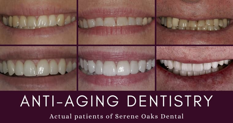 Three sets of before and after photos of anti-aging dentistry patients at Serene Oaks Dental