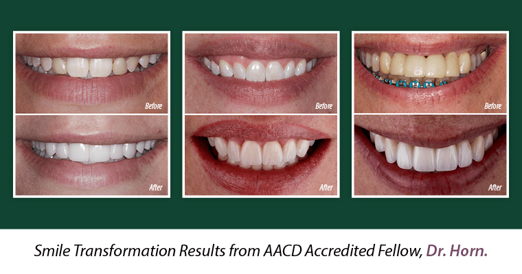 Three before and after photos of patients of Dr. Horn's with the text, Smile transformation results by AACD Accredited Fellow, Dr. Horn