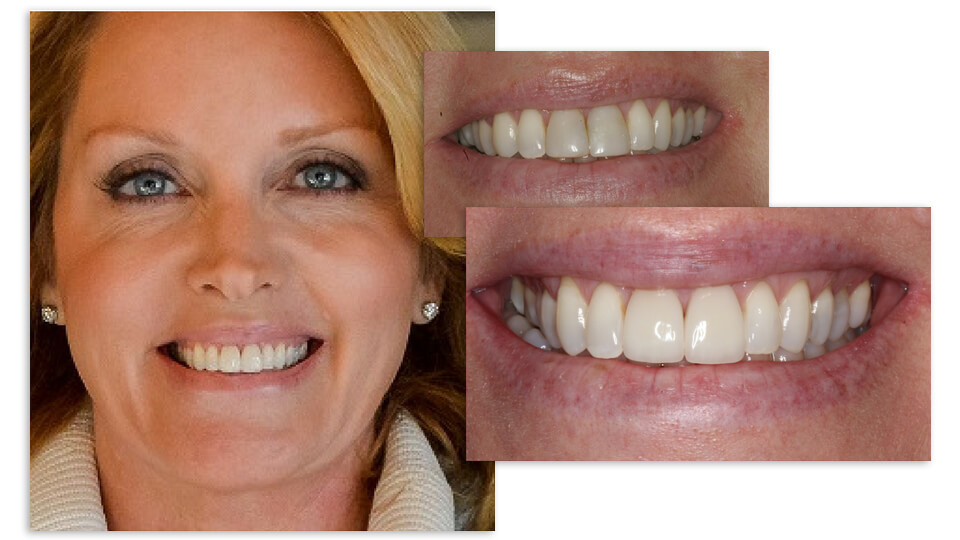 Shot of a Blonde woman close up and her before and after pictures