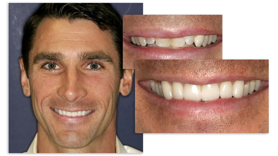 Collage of Craig's before and after smile
