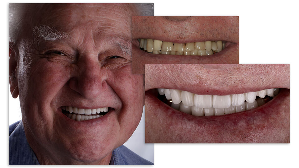 Collage of and elderly patient's before and after smile