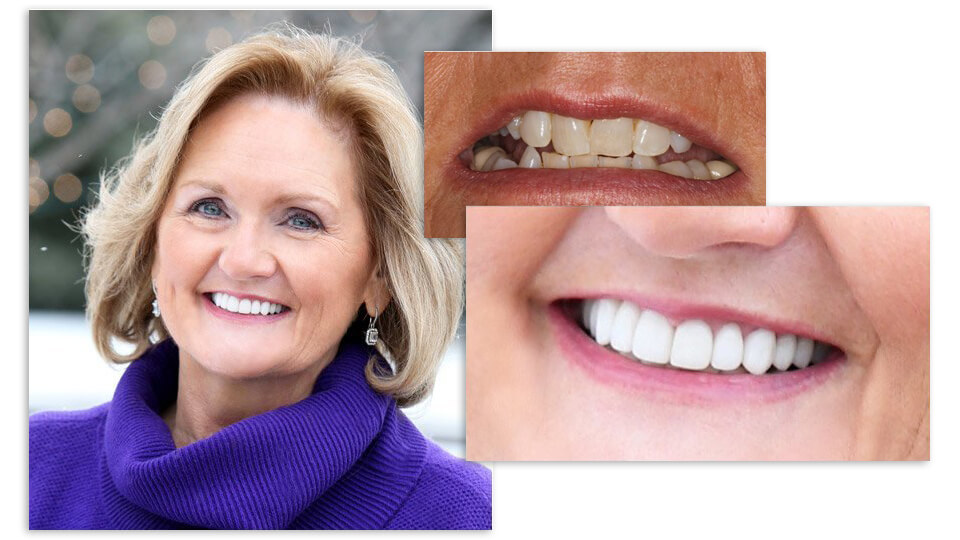 Collage of Jackie and her before and after smile