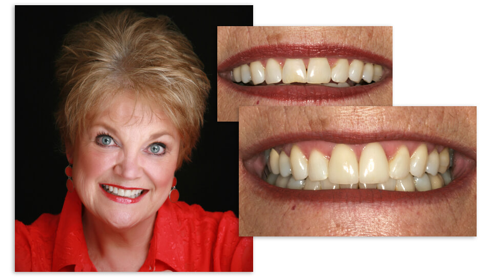 Collage of Jan and her before and after smile