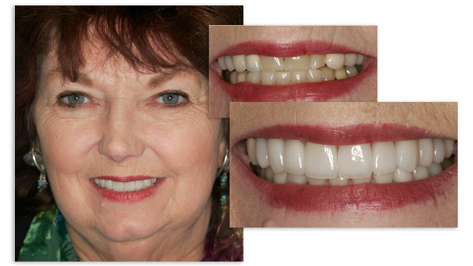 Collage of Janette and her before and after smile