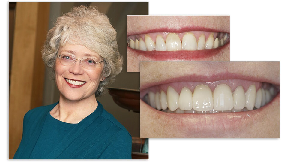 Collage of Mary and her before and after smile