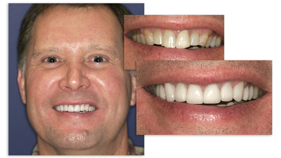 Collage of Paul and his before and after smile