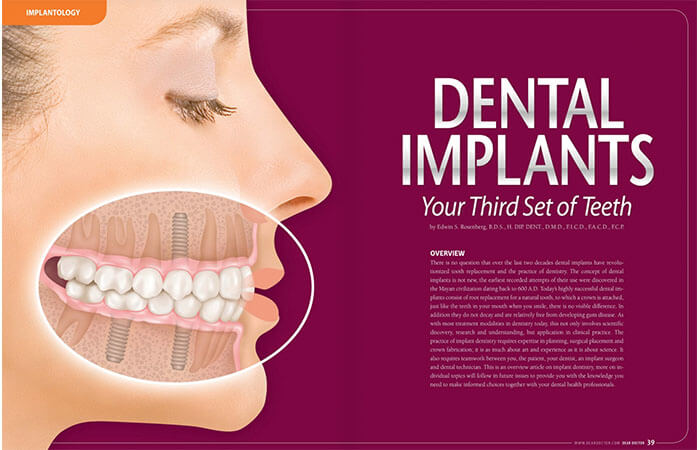 Dental Implants article cover