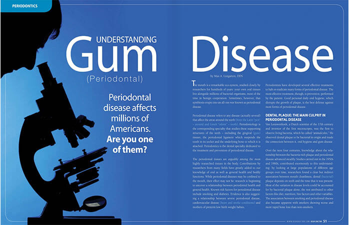 Gum (Periodontal) Disease article cover