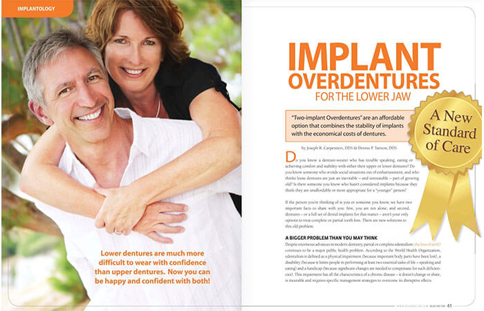 Implant Overdentures article cover