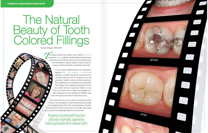Tooth Colored Fillings article cover