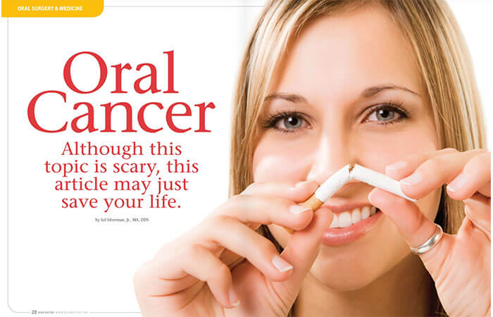 Oral Cancer article cover