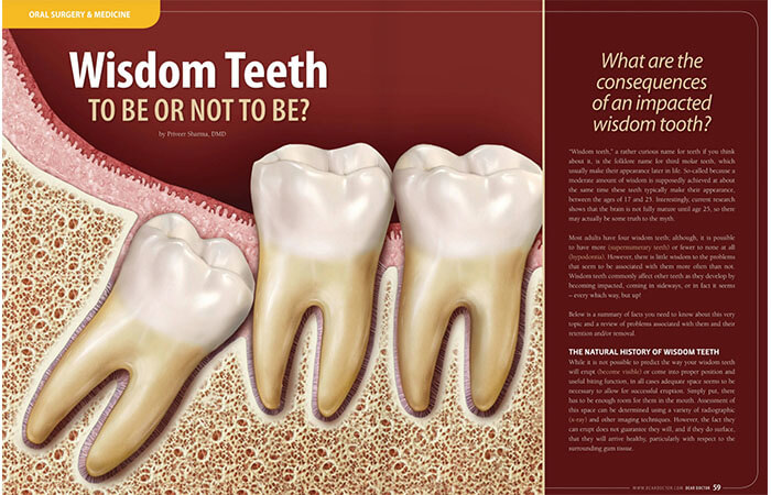 Wisdom Teeth article cover