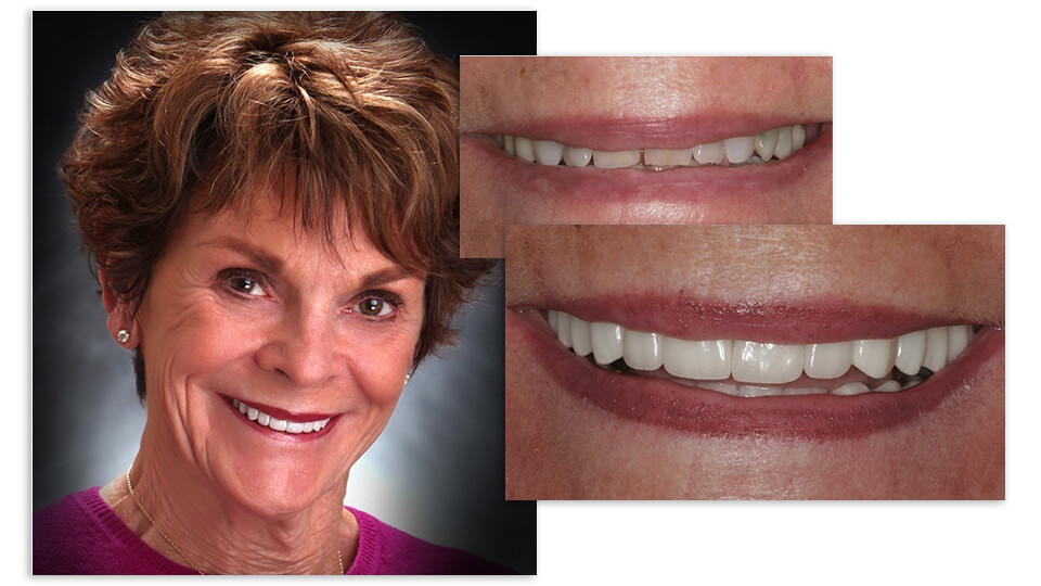 Collage of Sharon and her before and after smile