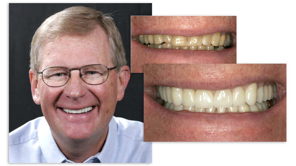 Collage of a Mr. Verdell and his before and after pictures