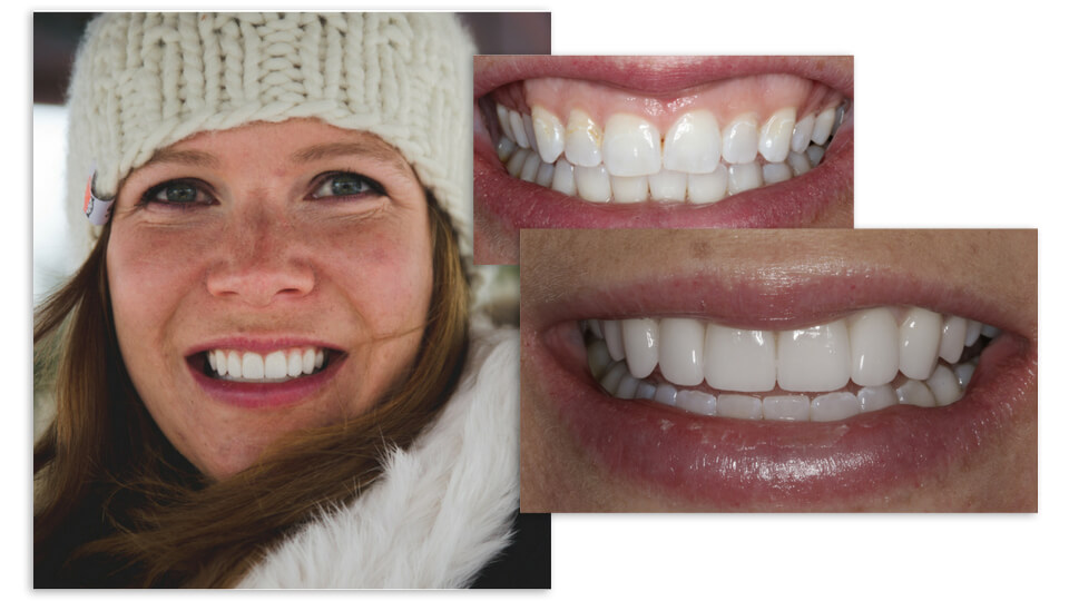 Collage of a woman with a knit hat and her before and after smile