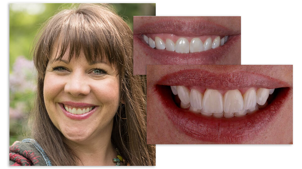 Before and after of a female patient's smile after our cosmetic services