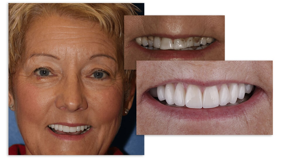 Collage of a blonde woman smile close up her before and after pictures