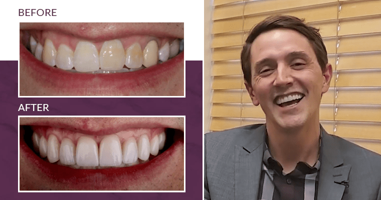 Matt's before-and-after smile makeover