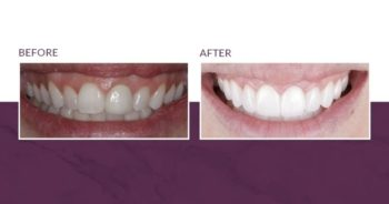 Gummy smile before and after prepless veneers and crown lengthening