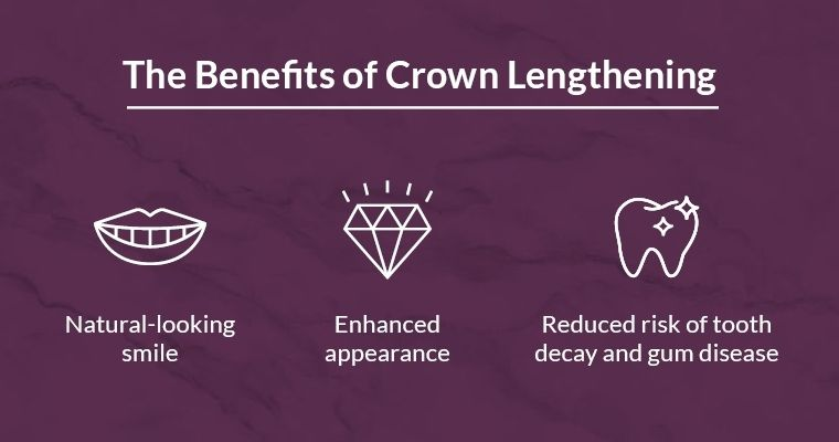 The benefits of crown lengthening: natural-looking smile, enhanced appearance, and reduced risk of tooth decay and gum disease