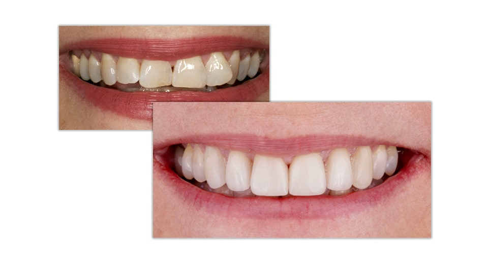 Before-and-after porcelain veneers close-up photo
