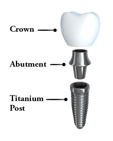 Dental implants North Oaks, MN- Anatomy of a dental implant