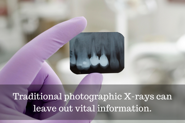 Traditional photographic x-rays can leave out vital information.