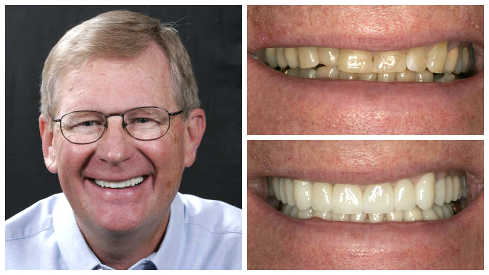 An actual before and after case study of Serene Oaks Dental.