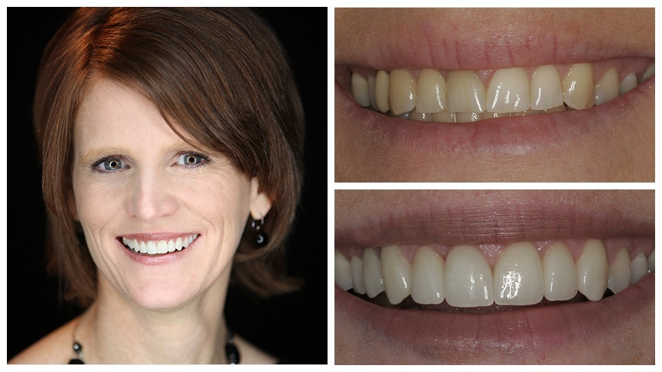 An actual patient of our cosmetic dentist in North Oaks shows her smile before and after treatment.