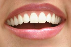 Closeup of a woman's smile showing how Zoom! Teeth Whitening can enhance your smile